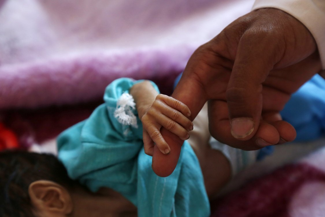 A malnourished child holds his father's finger while receiving treatment at a hospital in Sanaa